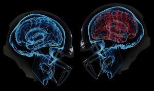 Gehirnerschütterung – vermeiden, erkennen und behandeln